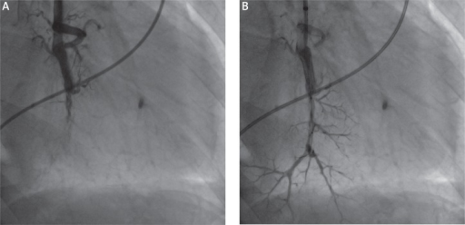 Balloon pulmonary angioplasty in a 67-year-old patient with persistent form of CTEPH. Left panel (A) presents the angiogram of occluded segmental pulmonary artery of left lower lobe. The BPA results in reperfusion of the vessel – right panel (B)