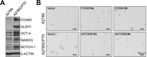 Effects of FOXM1 on stemness in the paired ovarian cancer cell lines A2780 and A2780CP70(A) Western blots of stem cell markers and the internal control β-ACTIN. (B) Upper panels: A2780 cells were stably transfected with vector alone or vector encoding FOXM1 (FOXM1 #a and #b). Lower panels: A2780CP70 cells were stably transfected with vector alone or vector encoding shFOXM1 (shFOXM1 #a and #b). Representative phase contrast images of the suspension spheres were taken on a widefield microscope. Scale bars, 100 μm.