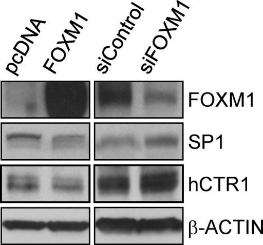 FOXM1 downregulates the expression of SP1 and hCTR1Western blots of FOXM1, SP1, hCTR1, and the internal control β-ACTIN in Ad293 cells expressing vector alone (pcDNA), vector encoding FOXM1, control siRNA (siControl), or FOXM1 siRNA (siFOXM1).