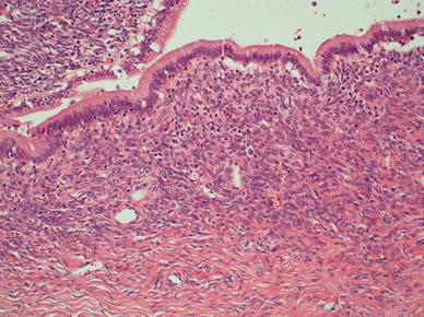 Microscopic findings revealed that the cystic lesion was lined with mucinous cuboidal epithelium, and OLS was observed extensively in the cyst wall stroma. MCN-L with low-grade dysplasia was diagnosed