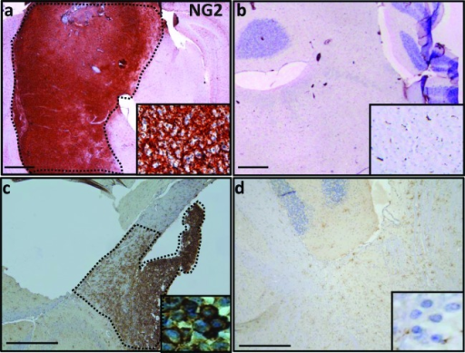 NG2 overexpression in PDGFB and PDGFB/H3.3 K27M/p53−/− mouse models(a) In mouse, expression of NG2 in PDGFB mouse was limited to brainstem tumor (dotted area). (b) Sporadic expression of NG2 across brainstem and cerebellum of normal mouse. (c) Injection of NSG SCID mouse with mouse DIPG cells that are H3.3.K27 mutant and have PDGFB overexpression and p53 deletion resulted in overexpression of NG2 (dotted area). (d) In the adjacent normal brain tissue of NSG SCID mouse injected with PDGFB/H3.3.K27M/p53−/− cells, NG2 overexpression was not detected. Insets are 40 × magnifications of the corresponding panel. Scale bar: 200 μM.