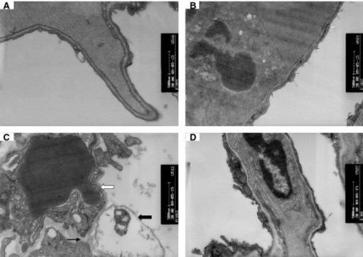Images of histological specimens from the lungs of animals under transmission electron microscope (×30,000). (A) control group; (B) KGF-2 group; (C) HVZP group: The alveolar–capillary barrier was severely damaged, including alveolar type I cell swelling (thick black arrowhead), basement membrane exposure (thick white arrowhead) and alveolar–capillary barrier rupture (thin black arrowhead). (D) HVZP+KGF-2 group: the alveolar–capillary barrier disruption was relatively mild.