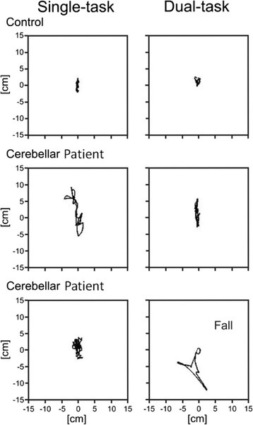 Sway path of center of gravity in condition 6 comparing single and dual task conditions for a healthy control and two cerebellar patients; modified according to [18].