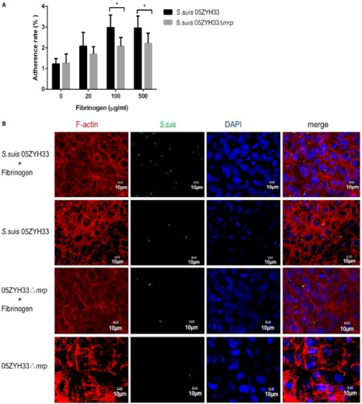 MRP-hFg interaction promotes the adherence of S. suis to hCMEC/D3 cells. (A) The adherent ratio of S. suis to hCMEC/D3 cells in the presence of hFg. S. suis 05ZYH33 and 05ZYH33Δmrp mutant were pretreated with a series of concentrations of hFg before infecting a hCMEC/D3 cell monolayer. The adherence ability of S. suis was evaluated by adherence assay. Values represent percent (mean ± S.D.) of total S. suis inoculum bound to the monolayers. (B) The adherent ability of S. suis to hCMEC/D3 cells evaluated by fluorescent microscopy. S. suis 05ZYH33 and 05ZYH33Δmrp mutant were labeled by BCECF (green) before infection, and hCMEC/D3 cell monolayers were treated or untreated with Fg (500 μg/ml). F-actin was strained with Rhodamine-labeled Phalloidin (red), nuclei were stained with DAPI (blue). *P < 0.05.