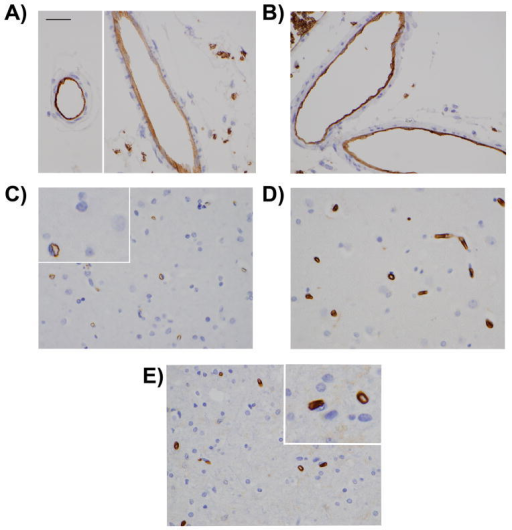 Immunohistochemical analysis of S1PR2 in human brainS1PR2 was detected in endothelial cells of pial vessels and microvessels in autopsy specimens. Representative images are shown. A) Case 1, B) Case 2, C) Case 3, D) Case 4, E) Case 5. Pictures were taken at 60x magnification. Scale bar 30μm.