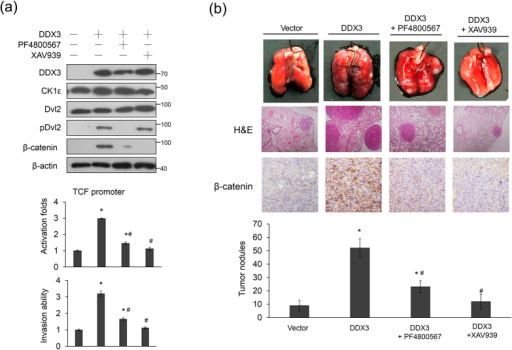 DDX3-mediated β-catenin/TCF activation is responsible for invasiveness in colon cancer cells and for lung tumor nodules formation in nude mice.(a) T84 cells were transfected with the indicated combination of TCF promoter plasmid and DDX3-overexpression plasmid. After 24 h, these cells were treated with a CKlε inhibitor (PF4800567) or a β-catenin inhibitor (XAV939) for an additional 5 h, and then the invasion capability for indicated cells was determined by Boyden chamber assays. The TCF promoter activity was evaluated by a luciferase reporter assay. The invasion ability and the TCF promoter activity of these cells with different treatments were shown as the fold changes compared with their NC and VC. All experiments were performed three independent times. The mean values and the standard deviations are indicated as columns with error bars. The P value was statistically determined by the Student's t-test. *P < 0.05 compared with vector (VC) or non-specific shRNA controls (NC). #P < 0.05 compared with DDX3-overexpressing T84 cells. (b) Examples of lungs of mice with visual lung tumor nodules at 6 weeks after tail vein inoculation of indicated cells. Representative hematoxylin and eosin staining demonstrates the lung tumor nodules from each group of mice. The number of lung tumor nodules in each group of mice is shown. β-catenin expressions in lung tumor nodules were evaluated by immunohistochemistry using a specific antibody. Data are presented as means ± SD. The P value was statistically determined by the Student's t-test. *P < 0.05 compared with vector control. #P < 0.05 compared with DDX3-overexpressing T84 cells. The samples were derived from the same experiment and gels/blots were processed in parallel. Full-length blots are presented in Supplementary information Figure S2.
