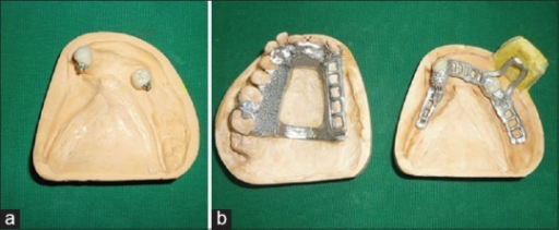 (a) Precision attachment (b) Cast partial denture framework