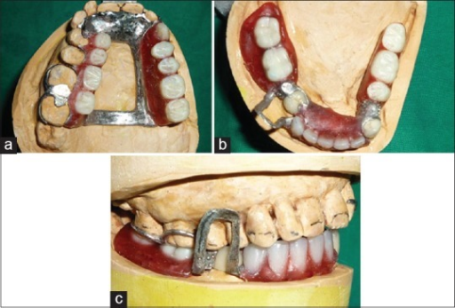 (a-c) Teeth arrangement