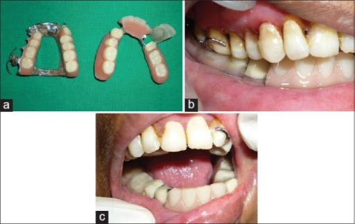 (a) Final prosthesis (b) Denture insertion (c) Deviation reduced due to guiding flange
