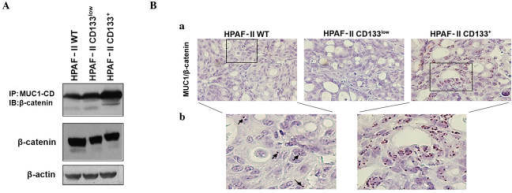 Evaluation of MUC1/β-catenin interaction in HPAF-II cells and xenografts. (A) β-catenin expression and its interaction with MUC1-CD in HPAF-II wt, HPAF-II CD133low and HPAF-II CD133+ cells was evaluated by immunoprecipitation and western blot analysis. β-actin was used as a loading control. (B) In situ PLA in tumor xenografts was used to evaluate the interaction between MUC1 and β-catenin; magnification, (a) ×400; (b) ×650 (Duolink in situ Detection Reagents Brightfield staining). Brown dots correspond to proximity/interaction between MUC1 and β-catenin. Arrows indicate the PLA signals in HPAF-II wt tumors. IP, immunoprecipitation; IB, immunoblotting; CD, cluster of differentiation; wt, wild-type; MUC1, mucin 1; MUC1-CD, mucin 1 cytoplasmic domain; PLA, proximity ligation assay.