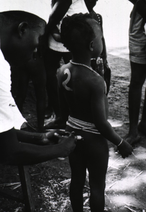 <p>A child, naked except for beads around the neck and waist, is receiving an injection of antibacterial agents in the buttocks. A number painted on the childs back indicates the amount of sulfone the child is to receive.</p>