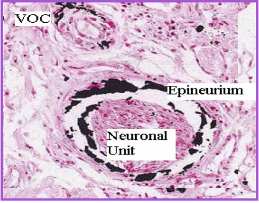 pathology and vulnerability Microtubule-associated protein tau is hyperphosphorylated and aggregated in affected neurons in alzheimer disease (ad) brains the tau pathology starts from the entorhinal cortex, spreads to the hippocampus and frontal and temporal cortices, and finally to all isocortex areas, but the cerebellum is spared from tau lesions.