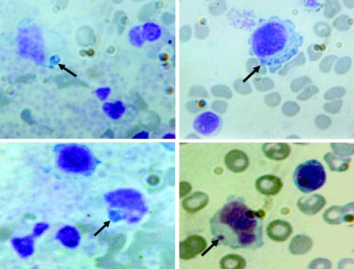 Peripheral blood smears (buffy-coat preparation) showing variable-sized basophilic inclusions (arrows) in mononuclear cells from a 9-year-old boy with human monocytic ehrlichiosis, Carabobo, Venezuela. Dip Quick (Jorgensen Laboratories, Inc., Loveland, CO, USA) staining; magnification ×1,000.