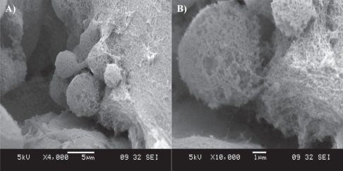 SEM imaging of a cluster of neural stem cells cultured in a RADA16-I-BMHP1 self-assembled scaffold. Low- (A) and high-magnification (B) images highlight cell bodies partially but tightly wrapped with functionalized nanofibers.