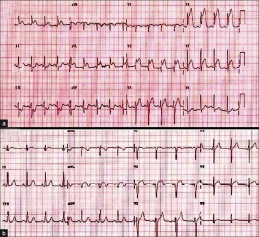(a) A 12-lead electrocardiogram shows ST elevation in leads V2 – V5, I, and AVL, with reciprocal ST-segment depression in leads II, III, and AVF. (b) Patient's electrocardiogram after successful fibrinolyitic therapy