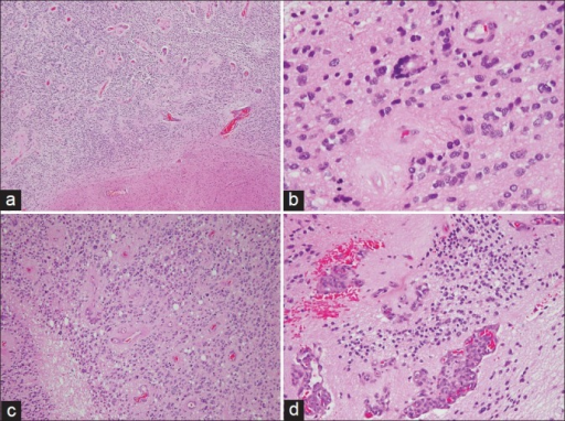 (a) Low power view showing a cellular tumor with perivascular pseudorosettes and a well demarcated border with the adjacent brain parenchyma (H and E, × 40). (b) An occasional true (ependymal) rosette is identified (H and E, × 400). (c) The tumor is mitotically active and shows areas of necrosis (H and E, × 200). (d) Microvascular proliferation is also present (H and E, × 200)