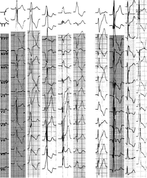 The most frequent morphologies of PVCs in our cohort of athletes. The first 5 cases of PVCs were characterized by LBBB morphology with variable axis deviation, and the next 4 cases of PVCs were characterized by RBBB morphology with variable axis deviation.