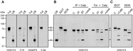 ISO6 FMRP is cleaved by calpain in isolated Cajal bodies.(A) The detected FMRP associated with the Cajal bodies has an apparent molecular weight lower than expected for ISO6 FMRP. Immunoblot analyses of FMRP present in Cajal bodies using different antibodies to FMRP. (B) ISO6 FMRP is a substrate for calpain1. Assays were carried out either with immunoprecipitated ISO6 FMRP or with total cell lysate in the presence of 0.05 U of Calpain 1 for 10 and 20 min at room temperature. The reaction was inhibited in the presence of ALLN (+ Inhib). C : control reaction without the enzyme. (C) Comparison of cleavage products and intermediates between ISO6 and ISO7 FMRP. FMRP species were revealed with four different antibodies in (A) and with mAb1C3 in (B,C).