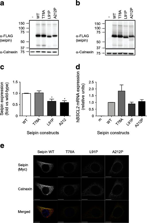 The pathogenic point mutations T78A, L91P and A212P do not affect seipin protein expression, but L91P and A212P seipin partially mislocalise to the nuclear envelope. (a) HEK293 cells were transfected with empty vector (−), the long form of wild-type seipin with N-terminal triple-FLAG and C-terminal Myc tags (WT) or with identically tagged T78A, L91P or A212P forms. Lysates were separated by SDS-PAGE and immunoblotted for FLAG (α-FLAG) and calnexin (α-Calnexin). (b) C3H10T1/2 cells were transfected with empty vector (−) or with epitope-tagged WT or mutant forms of seipin as in (a). Lysates were separated by SDS-PAGE and immunoblotted for FLAG and calnexin. In (a) and (b) blots are representative of at least three independent experiments. (c) Quantitative analysis of WT, T78A, L91P or A212P forms of seipin protein in C3H10T1/2 cells. FLAG–seipin bands from replicated blots as shown in (b) were normalised to calnexin expression in the same samples and expressed as means ± SEM, n = 3. *p < 0.05 vs WT. (d) C3H10T1/2 cells were transfected with empty vector (m) or with epitope-tagged WT or mutant forms of seipin as in (a). Cells were induced to differentiate for 2 days and expression of mRNA encoding transfected human seipin (hBSCL2) was determined by real-time PCR. Data are normalised to cyclophilin A and expressed as means ± SEM, n = 4. (e) Subconfluent C3H10T1/2 pre-adipocytes were transfected with epitope-tagged WT or mutant forms of seipin and were fixed and immunostained for seipin using anti-Myc antibody or with anti-calnexin antibody to reveal the ER. Individual images are shown in greyscale and merged images show overlay of Myc–seipin (green) and calnexin (red). Scale bars, 10 μm
