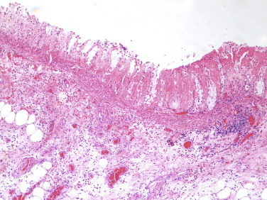 Ischemic necrosis of the mucosa ghost like remnants of glands with loss of the epithelium and bland necrosis of the lamina propria.