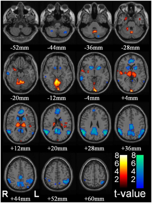 "Thalamic increases and ""default mode"" cortical decreases are the most prominent changes seen with conventional HRF modeling in SPM. fMRI increases (warm colors) and decreases (cool colors) are shown resulting from group analysis with second-level random-effects analysis, FDR-corrected height threshold p_0.05, and extent threshold k_3 voxels (voxel dimensions_ 2 _ 2 _ 2 mm). Functional data are superimposed on the Montreal Neurological Institute brain template ""colin27"" (single_subj_T1 in SPM2) displayed in radiological right–left convention. In total, 54 seizures in nine patients (40 in 8 patients during CPT or RTT; 14 in 4 patients during VFT, 3 patients with both CPT/RTT and VFT runs) were analyzed using GLM with canonical HRF in SPM2. The dataset in this analysis was the same as Figure 1. fMRI increases were seen in bilateral thalamus, occipital (calcarine) cortex, and to a lesser extent in the midline cerebellum, anterior and lateral temporal lobes, insula, and adjacent to the lateral ventricles. fMRI decreases were seen in the bilateral lateral parietal, medial parietal, and cingulate cortex and basal ganglia (46) (published with permission from the Journal of Neuroscience, copyright 2010, SFN)."