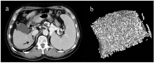 Representative 3D MDCT images of the L3 vertebra obtained from a 71-year-old man after five dynamic CT scans and two transarterial chemoembolization procedures for hepatocellular carcinomas.An axial CT image of the liver shows a recurrence of hepatocellular carcinoma in S7 as a low density area compared to adjacent liver parenchyma(a), (black arrow). The 3D image of the L3 vertebra is shown (b). Tissue bone mineral density (76.8 mg/cm3) is normal for age. The image is cut in half along the longitudinal midline.