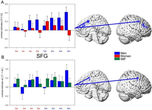Graduate voice gender morphing.A. Contrast estimates of stronger activation in men as compared to women (blue) in the right SFG (peak voxel 15 5 52) for increasing morphing degree plotted for all 8 conditions. B. Contrast estimates of stronger activation in men as compared to MtFs (blue) in the right SFG (peak voxel 27 −1 46) for increasing morphing degree plotted for all 8 conditions (p<0.05 Monte Carlo corrected, extent threshold  = 20 voxels).