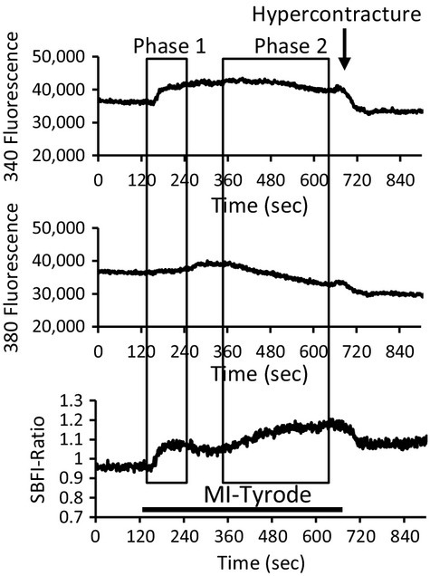 The SBFI fluorescence measurement of intracellular sodium. Record of SBFI‐fluorescence record at F(340) and F(380) and the ratio F(340/380), during perfusion of a control myocyte with MI‐Tyrode.