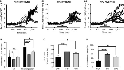 Ca2+‐homeostasis in conventional and remotely preconditioned myocytes subject to MI and reenergization. (A) Simultaneous recordings of [Ca2+]i from (i) seven control myocytes; (ii) nine conventional IPC‐myocytes, and (iii) nine rIPC‐myocytes from a single field of view during metabolic inhibition (8 min) and reenergization (10 min). (B) The mean Fura 2 ratio at the end of 8 min MI and 10 min reenergization for control naïve myocytes (black), conventional IPC‐myocytes (dark gray), and remote IPC‐myocytes (light gray). (C) Percentage of myocytes with a diastolic Fura‐2 ratio <2.0 after 10 min of reenergization. (D) Percentage of myocytes contracting in response to field stimulation after 10 min of reenergization. Mean ± SEM; *P < 0.05, **P < 0.01, ***P < 0.001, one‐way ANOVA followed by Tukey's post hoc test for significance. Control myocytes = 6 hearts; 23 observations and 185 myocytes, conventional IPC = 6; 28, and 254, remote IPC = 6; 33, and 315.