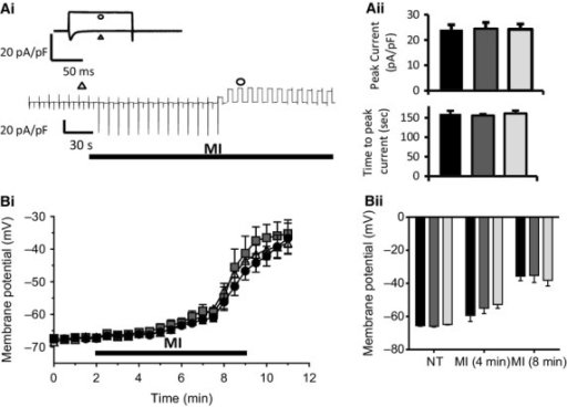 Resting membrane potential in conventional and remotely preconditioned myocytes subject to MI and reenergization. (A) (i) Concatenated record of whole‐cell membrane currents from a control myocyte showing the activation of sarcKATP current during perfusion with MI‐Tyrode. (Insert) Membrane current in response to depolarization from the holding potential of −50 mV to the test potential of 0 mV, in normal Tyrode (triangle) and at the peak sarcKATP current amplitude (circle). (ii) Bar chart showing the peak sarcKATP current density (top) and time to peak current during metabolic inhibition in control (black), conventional IPC (dark gray), and remote IPC myocytes (light gray). (B) (i) Record of resting membrane potential measured using DiBac4(3) fluorescence in control, conventional IPC, and remote IPC myocytes. Values are the mean ± SEM from a single experimental run where the RMP was determined simultaneously from 5 to 8 myocytes in a single field of view. (ii) Mean data ± SEM of the resting membrane potential recorded in normal Tyrode and in MI‐Tyrode at 4 and 8 min, from control naïve (black), conventional IPC (dark gray), and remote IPC myocytes (light gray). ANOVA followed by Tukey's post hoc test for significance. Control naïve‐myocytes = 6 hearts; 62 cells, conventional IPC‐myocytes = 4; 26, remote IPC‐myocytes = 6; 63.