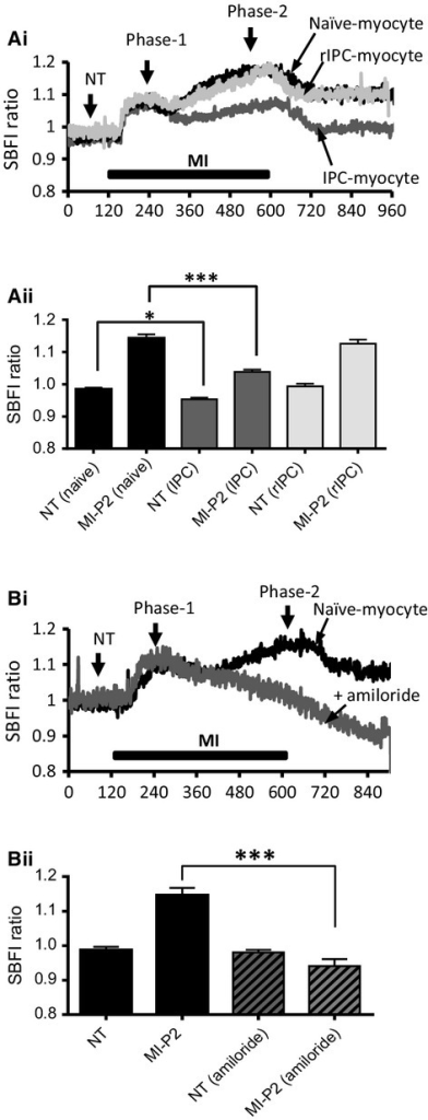 Intracellular sodium concentrations (SBFI ratio) in conventional and remotely preconditioned myocytes subject to MI and reenergization. (A) (i) Recordings of SBFI ratio as an indicator of [Na+]i in a control naïve‐myocyte (black trace), conventional IPC‐myocyte (dark gray), and remote IPC myocyte (light gray) during perfusion with MI‐Tyrode. (ii) Mean data ± SEM of the SBFI ratio recorded in normal Tyrode (NT) and at the end of 8 min perfusion with MI‐Tyrode (as indicated on 4Ai). (B) (i) Recordings of SBFI ratio in a control naïve‐myocyte (black trace) and a naïve‐myocyte in the presence of amiloride (dark gray) during perfusion with MI‐Tyrode. (ii) Mean data ± SEM of the SBFI ratio recorded in normal Tyrode (NT) and at the end of 8 min perfusion with MI‐Tyrode. *P < 0.05, ***P < 0.001, one‐way ANOVA followed by Tukey's post hoc test for significance. Control naïve‐myocytes = 5 hearts; 50 cells, conventional IPC‐myocytes = 5; 45, remote IPC‐myocytes = 5; 38, and Control naïve‐myocytes + amiloride = 3; 18.