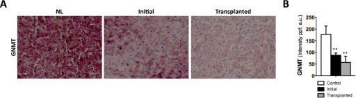 Low GNMT expression in human PBC livers(A) IHC and (B) further quantification using FRIDA software showing lower GNMT expression in human samples from PBC patients at initial stages or after transplantation compared to healthy controls. n= 8–10. **p< 0.01 (Healthy vs early PBC and healthy vs late PBC). Error bars represent SD.