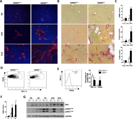 Exacerbated fibrogenesis in GNMT−/− mice concurs with activation of NK1.1+ cells(A) IF using an αSMA Ab and (B) Sirius Red staining showed increased fibrosis in GNMT−/− mice. (C) qPCR analysis of mRNA expression of αSMA, collagen1A1 and TLR9 confirmed HSC activation. (D) Dot plot of FACS analysis on isolated liver mononuclear cells (MNCs) showing lower number of CD45+/NK1.1.+ cells in GNMT−/− mice. (E) Histogram showing higher presence of TRAIL in the cell surface of NK1.1+ cells in GNMT−/− liver-MNCs. Bar-plot representing the data obtained by FACS analysis showing low presence of NK1.1+ cells correlating with high expression of TRAIL in GNMT−/− liver-MNCs. (F) qPCR analysis showing increased DR5 mRNA expression in GNMT−/− mice. (H) Western blot analysis confirmed that GNMT−/− mice have higher expression of DR5 after BDL correlating with increased phosphorylation of JNK after surgery. n = 5–7. *p< 0.05; **p< 0.01; ***P < 0.001 (GNMT+/+ vs GNMT−/−) Error bars represent SD.