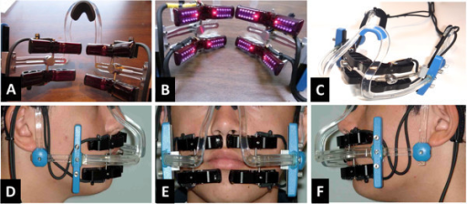Device components and a clinical presentation. (A, B) A set of four extra-oral treatment arrays, each with a flexible printed circuit board and a set of LEDs mounted on a contoured heat sink and infrared-transmissible plastic lens, with conductive cables to the controller. (C) A headset similar to an eyeglass support structure to be worn by the patient on a daily or weekly basis, with attachment and adjustment mechanisms to position the treatment arrays in the appropriate location for the given patient. (D, E, F) Clinical presentation of the device.