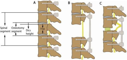 Schematics demonstrating the shortening process.(A) T8-   Open-i