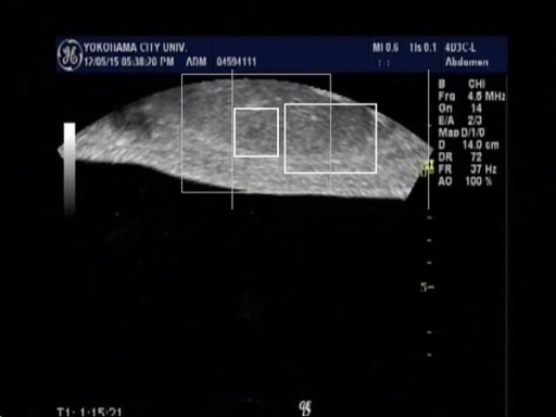 Tumor of the monitor ultrasonography was tracked in the small square, and it was tracked successfully in breath out position