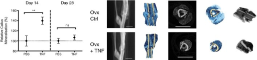 TNF promotes fracture healing in osteoporotic bonerhTNF treatment augmented early phase fracture healing in osteoporotic mice. Treatment with 1 ng rhTNF at the fracture site on days 0 and 1 led to increased % callus mineralization at day 14 but no difference at day 28 indicating accelerated early healing but the same final result at day 28. Data are presented as mean ± SEM. At day 14, PBS control versus TNF, **P = 0.0099; at day 28, PBS control versus TNF, nsP = 0.37, by unpaired two-sided t-test. Representative micro-CT images at day 14 are shown. rhTNF treatment led to mature callus bridging across the fracture which was absent in the PBS-treated control group. Scale bar, 2 mm.