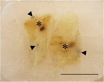 Gross image of paraffin-embedded red focal change. Transient form with both red (asterisk) and melanised (arrowheads) changes. Scale bar = 1 cm.