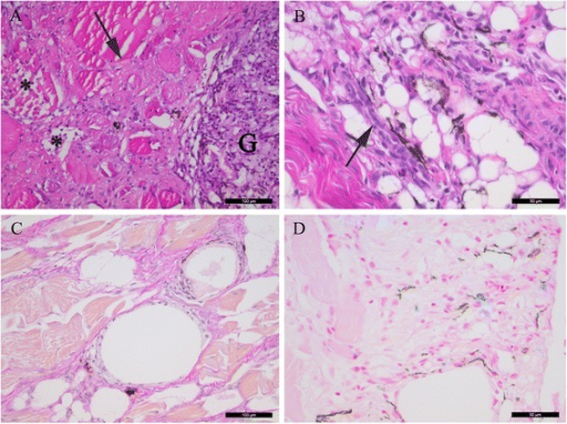 Histological investigations of melanised focal changes. (A) Transverse section of necrotic muscle cells (asterisk) and severe fibrosis (arrow) with infiltrates of leukocytes. A cell-rich granuloma with melanin-containing cells is present in the right part of the picture (G), displaying a heterogeneous morphology (HE staining). (B) Severe vacuolisation and adipocytes with surrounding melano-macrophages (black) and clusters of regenerating myocytes with a basophilc cytoplasm (arrow) (HE staining). (C) Multiple vacuoles in an area with severe fibrosis (intense red staining) (van Gieson staining). (D) Several iron-containing macrophage-like cells (blue staining) in association with melano-macrophages (black) (Pearls' Berlin blue staining). (A, C) scale bar = 100 μm, (B, D) scale bar = 50 μm.