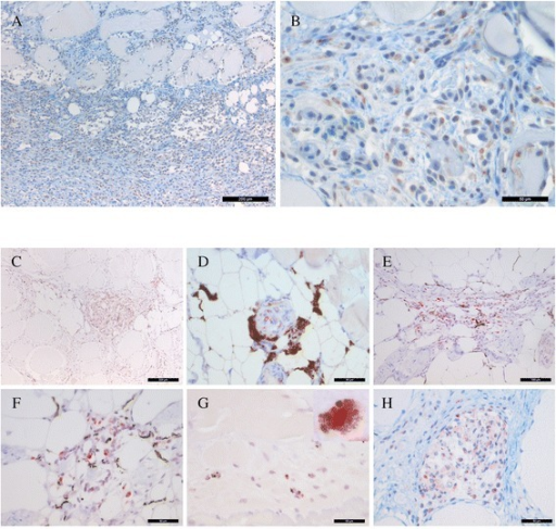 Immunohistochemical staining for PRV antigens of red (A-B) and melanised (C-H) focal changes. (A) Abundant amounts of PRV-positive cells (brown) and erythrocytes in the necrotic muscle tissue. (B) Transverse section of necrotic myocytes with intracellular PRV-positive macrophage-like cells and erythrocytes (brown). Distinct granular staining is present in the cytoplasm of the macrophage-like cells. (C) A well-organised granuloma is present in the center of the image, heavily positive for PRV (red), and with vast amounts of elongated melano-macrophages (black). (D) A single granuloma with PRV-positive cells (red) surrounded by heavily pigmented melano-macrophages. (E) A focus with necrotic tissue and infiltrates of melano-macrophages (black) and macrophage-like cells positive for PRV (red). (F) A close-up of E where the distinct reaction in the cytoplasm is evident (red). (G) PRV antigen (red) in melano-macrophages (black) in a necrotic myocyte. Higher resolution image in the upper right corner (100 x). (H) A single necrotic myocyte undergoing phagocytosis and containing abundant PRV-positive macrophage-like cells (red). (A, C) scale bar = 200 μm, (E) scale bar = 100 μm, (B, D, F, G, H) scale bar = 50 μm