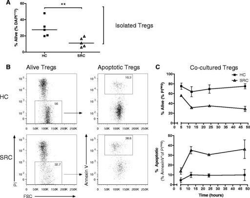 Impaired survival of sarcoidosis Tregs. Isolated Tregs (purity >97 %) were cultured with recombinant human IL-2. a Percentage alive Tregs at 72 hours of culture. Horizontal line indicates the median. Significance was determined using a Mann–Whitney U test, **p < 0.01. b Representative flow cytometry analysis of an HC and SRC patient after 12 hours co-culture with autologous Th cells to determine Treg survival and apoptosis. c Survival (above) and apoptosis (below) graph of Tregs cultured for 48 hours with autologous Th cells. Dots indicate mean +/− SEM of 3 HCs and 3 SRC patients. One representative experiment is shown of 3 independent experiments. HC healthy control, SRC sarcoidosis