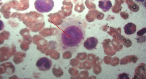 Bone marrow smear in center reveals one large atypical plasma cell, which has prominent nucleoli and abundant cytoplasm. There is loss of normal nuclear configuration with a fraying border.
