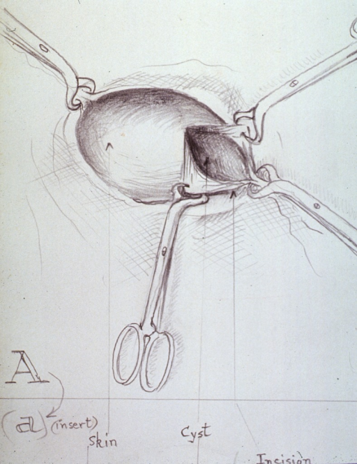 <p>Illustration showing the incision in the skin for the removal of the cyst.</p>
