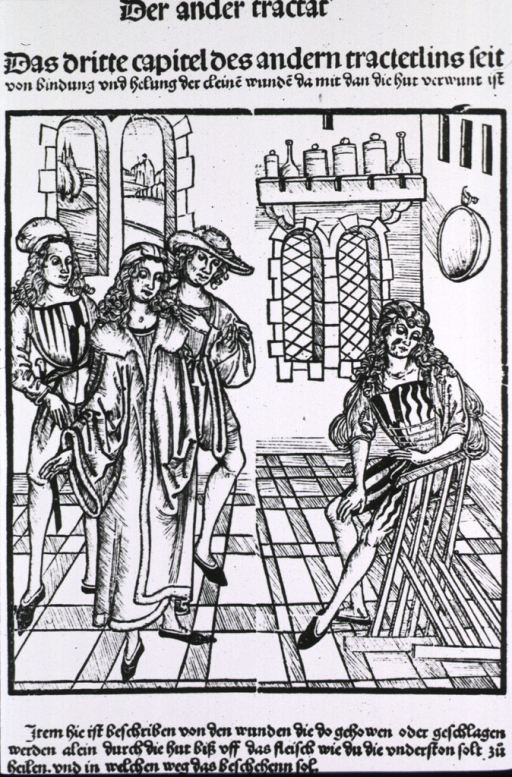 <p>Man sitting in chair with flesh wound on face.  Three others attending in the interior scene.</p>