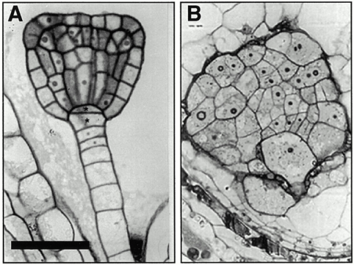 Cytokinesis defects in keule embryos A and B depict histological embryo sections (A) wild-type (triangular) (B) keule (delayed in their development). Note the large, irregularly shaped multinucleate cells in keule mutants. Bar: (A) 50 μm; (B) 20 μm.