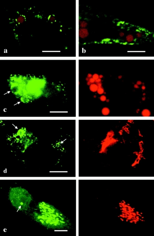 Confocal microscopy of HepG2 stably expressing caveolin-2β (a) and caveolin-1 (b). Caveolins (green), LD stained by Sudan III (red). Caveolin-2 is seen around LD discontinuously, whereas caveolin-1 is along the cell edge, and not related to LD. (c) FRTL-5 transiently transfected with full-length caveolin-2 cDNA and cultured with OA/BSA for 2 d. Caveolin-2 (green) is observed around LD (red). HepG2 stably transfected with caveolin-2β (d) or full-length caveolin-2 (e) cDNA was labeled for caveolin-2 (green) and GM130 (red). The labeling of caveolin-2β overlapping with that of GM130 is scarce (d), whereas caveolin-2α, the predominant isoform in the cell, is mostly localized in the Golgi (e). Arrows indicate labeling around LD. Bars, 10 μm.