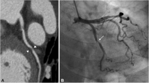 A 67-year-old female patient with a critical coronary artery stenosis (>70%) in a triple rule-out study. A: critical coronary artery stenosis (>70%, arrowheads) with non-calcified plaque is identified at the proximal left circumflex coronary artery on a curved multi-planar reformatted image. B: critical coronary artery stenosis (arrow) is also identified in the same segment on coronary angiography.