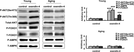 Exendin-4 induced AKT and FOXO1 phosphorylation in young mice but not aging mice.Phospho-AKT, FOXO1 and AMPK were detected in liver tissues of both young and old mice, the western results were semiquantified (Fig.5). Values were shown as Mean±SD, ***P<0.01.