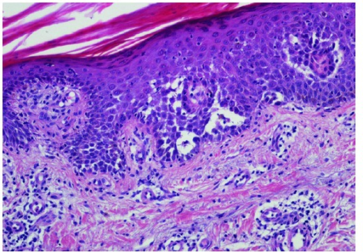 Epidermis showed hypergranulosis and suprabasal clefts containing acantholytic dyskeratotic keratinocytes (H&E 200x).