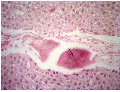 Layers of epithelial odontogenic cells forming prominent intercellular bridges. Areas of extracellular, amyloid-like material, and concentric calcifications (arrow), Liesegang rings (HE/40x).